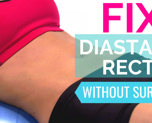 fix diastasis recti